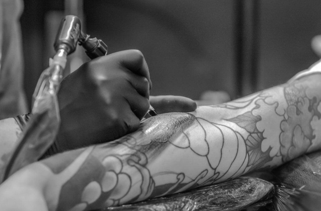 IHY_2019_tatuaggi_pelle_rimozione.001