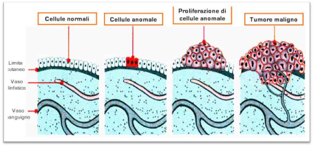 melanoma1